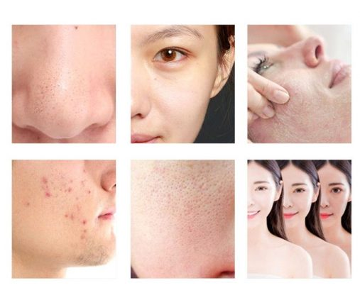 Can be used to treat a variety of skin problems