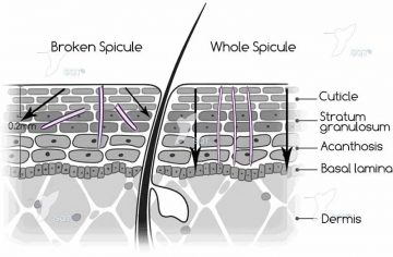 The importance of Spicule integrity